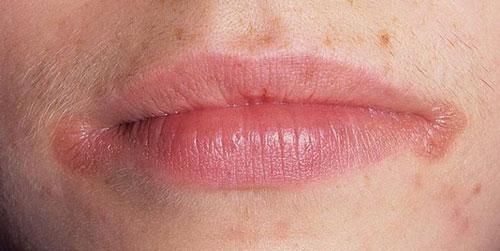 Заеды на губах: причины, как лечить и каких витаминов не хватает