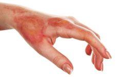 Лечение ожогов мазями и народными средствами в домашних условиях