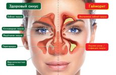 Симптомы и первые признаки гайморита у взрослых