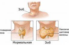 Диагностика зоба щитовидной железы: почему появляется, что это такое, способы лечения