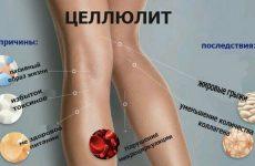Причины появления целлюлита на ногах и попе и как избавиться от него в домашних условиях