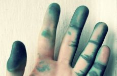 Как быстро вывести зеленку с кожи